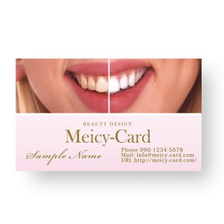 【 可愛い名刺 】 サロン名刺・ショップカード|美容歯科クリニック・ホワイトニング01