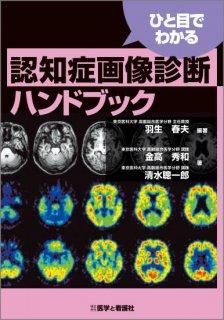 <b>ひと目でわかる 認知症画像診断ハンドブック</b>