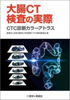 <b>大腸CT検査の実際</b><br>─CTC診断カラーアトラス─